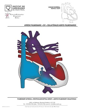 Liste des principales cardiopathies congénitales adultes | Institut ...